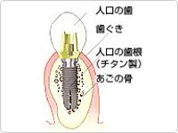 インプラント治療 断面図