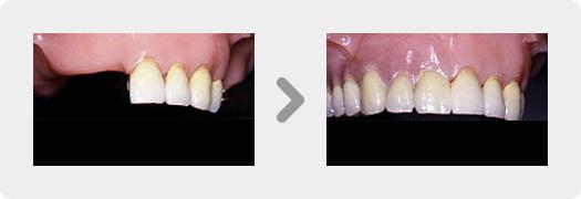 コバルトクロム部分床義歯、歯冠内アタッチメント