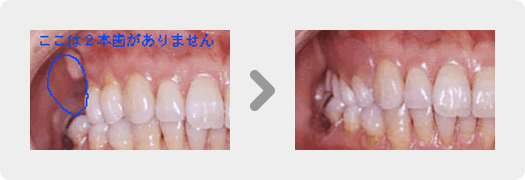 金具がない部分入れ歯(フレキシブルデンチャ-)
