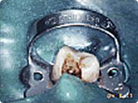 歯の根の治療手順 1