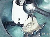 歯の根の治療手順 4